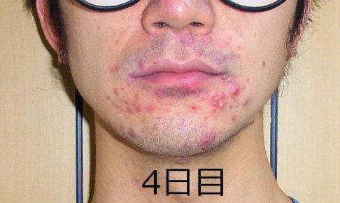 【4日目】顎に黄色いニキビが大量発生