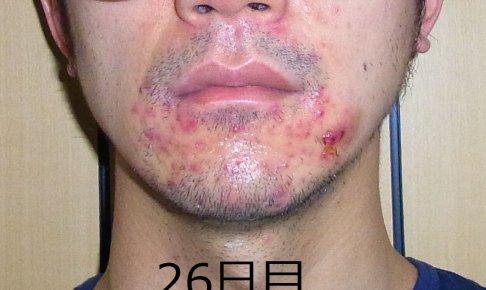 【26日目】皮膚科に行ってきました