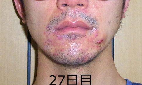 【27日目】皮膚科で教えてもらったニキビの本当の原因と治療方法
